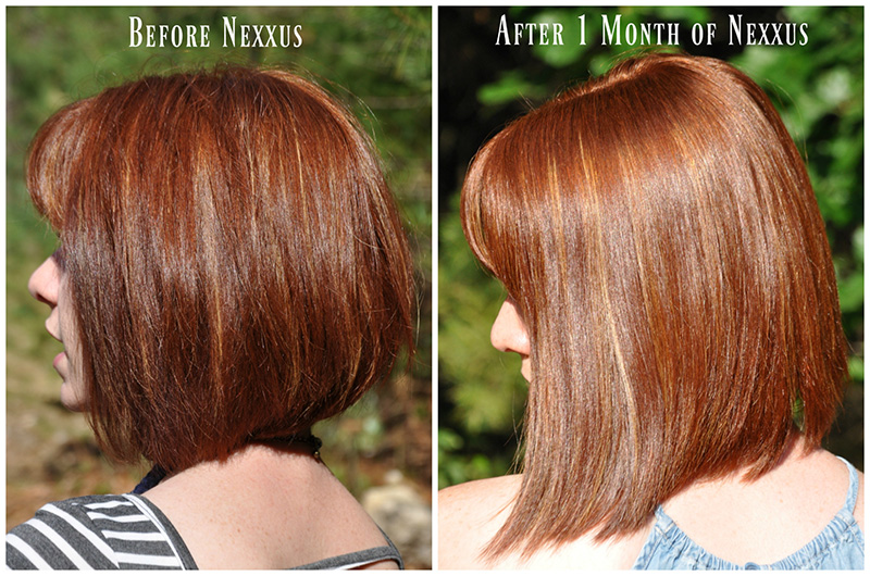 before and after using nexxus