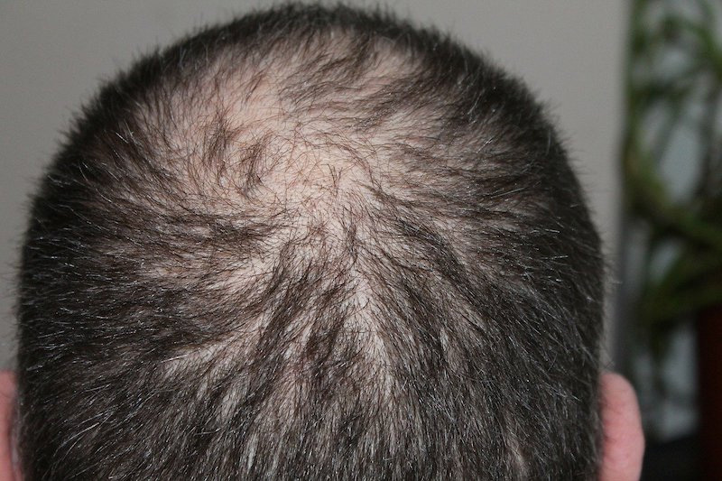 growing new hair around the cowlick area
